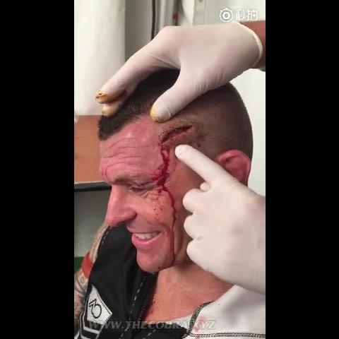 搞笑 澳洲泰拳王约翰韦恩帕尔头上开了大口子需缝15针 然而医生却这么调戏他 微博@爷爱怀旧 搞笑